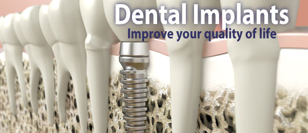Dental implants advert