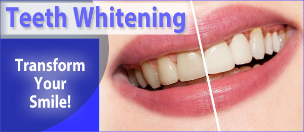 Teeth whitening advert